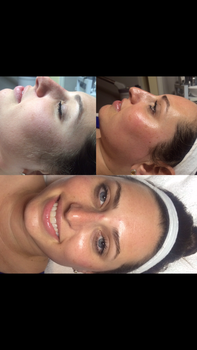 Dermaplaning  Dermaplaning is an excellent alternative or a complimentary treatment to microdermabrasion and chemical peels.  It is a gentle form of manual exfoliation of the skin . . . a skin resurfacing treatment utilizing a special blade, in featherlike strokes, gently removing the top layers of dead skin cells. This exfoliation treatment encourages the skin to regenerate new skin cells, allows for better penetration and absorption of serums, vitamins and skincare products, and can also be used to prep the skin for other skin care treatments, such as chemical peels, optimizing your results. The Dermaplaning procedure also has the added bonus of removing fine vellus hair (peach fuzz) from the face. Fine hair on the face can often cause a build up of dirt and oil that can leave the complexion looking dull. Dermaplaning will leave your skin feeling softer, smoother, healthier with a more refined glowing appearance.  A flawless canvas for makeup application.  Add $50 for collagen mask.