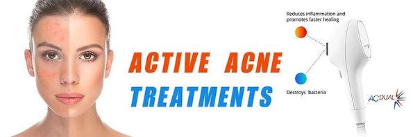 Mt Kisco NY, Skinsa Beauty by Kristen Evans, IPL Acne Treatment