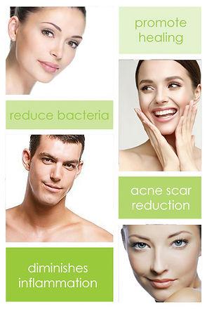 IPL Dual Light Acne Treatment