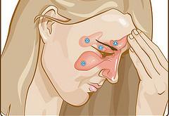 Como tratarSinosite com a Ayurveda