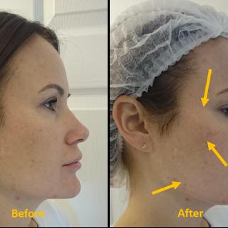 Multi-Point Reverse Time Signature Full Face Harmonizing Treatment