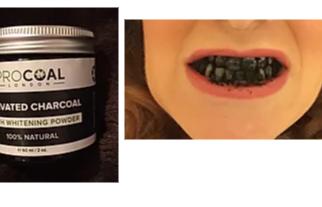 Teeth Whitening & Dental Health