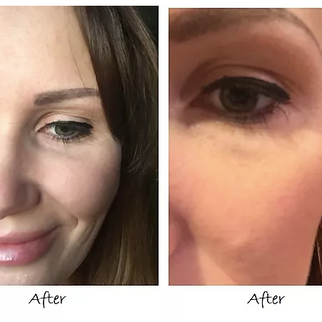 Botox for Crows Feet by Visage Academy