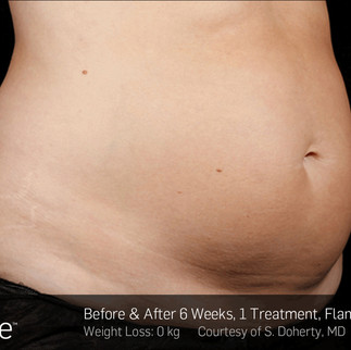 SculpSure Fat Reduction Treatment at PHI Clinic.