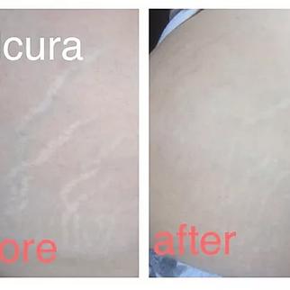 Salcura stretch mark range
