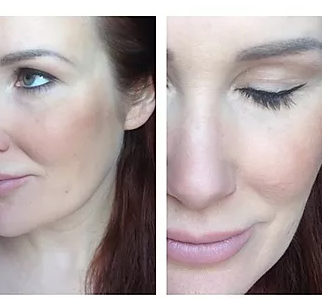 Cheek enhancement with visage aesthetics