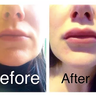 Lip Enhancement with Dr Sotirios Foutsizoglou