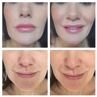 Lips, Chin & fine perioral lines by Visage
