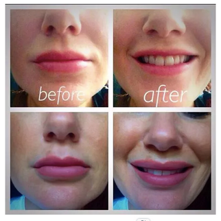 Advanced lip enhancement