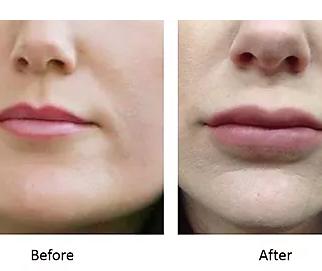 Lip Masterclass with KT Training