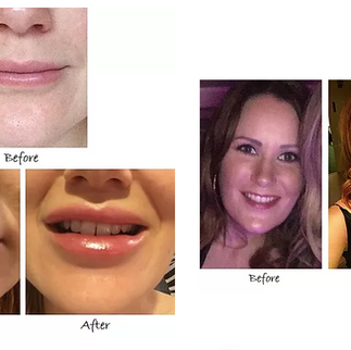 Lip Correction by Visage Academy
