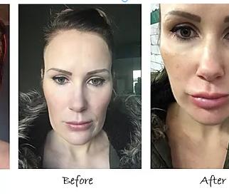 Non-Surgical Cheek Enhancement by Visage Academy