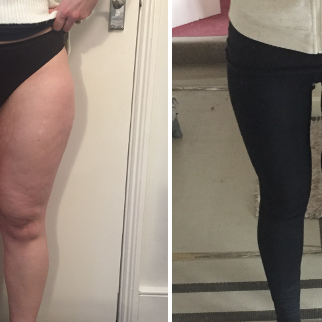 Achieving the Thigh Gap - AQUALYX on the Inner Thigh