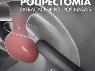 Saiba mais  sobre extração de pólipos nasais