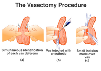 Vasectomy 2.png