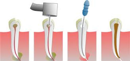 root canal in hollywood florida