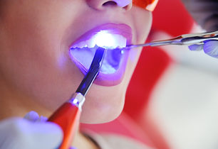 A male dentist is filling the tooth with