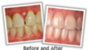 Dentist hollywood florida