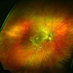 healthy_retina.jpg