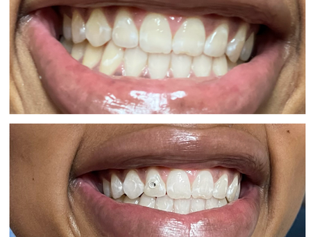Teeth Whitening Appointments Available