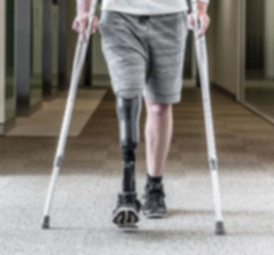 Prosthetic Leg-