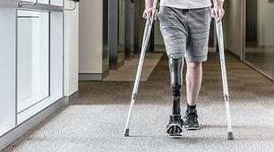Prosthetic Leg