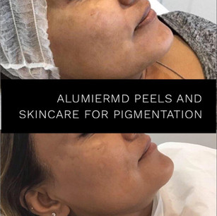 AlumierMD Chemical Peels