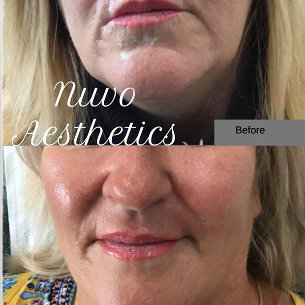 Cheek and Lip Lines Fillers