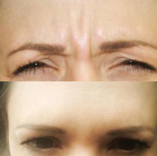 Frownline Botox
