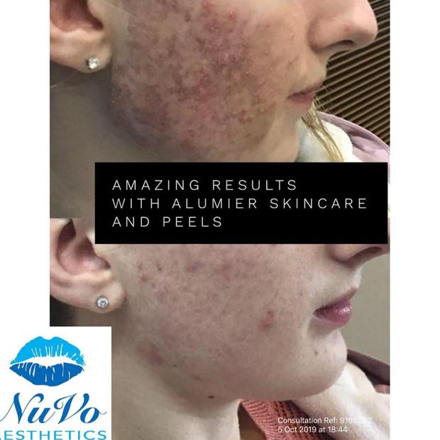 AlumierMD Skincare and Peels