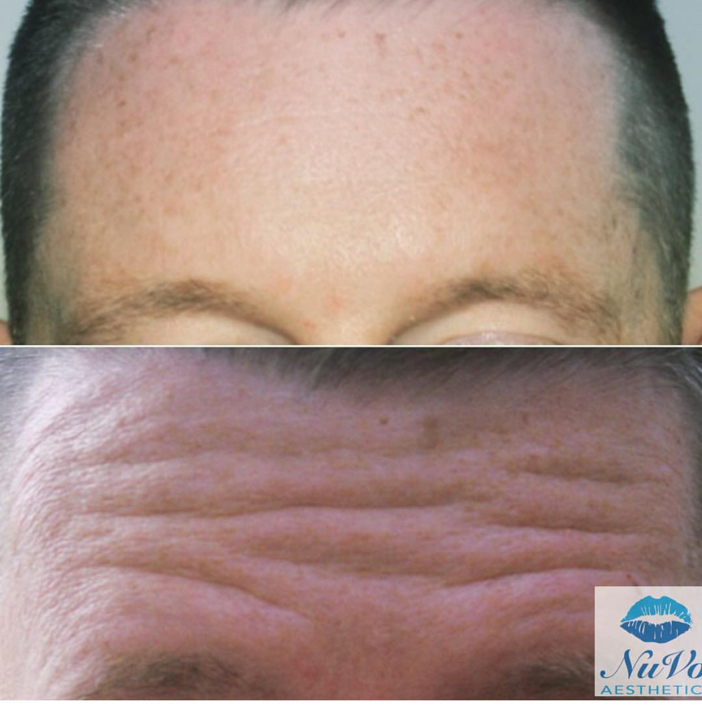 Male Forehead Botox