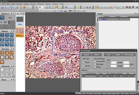 microscope software AOI tool