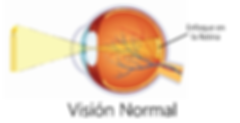 Vision Normal