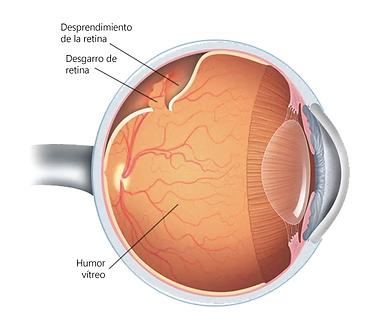 Desprendimento de Retina