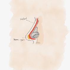 Close rhinoplasty4.png