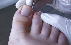 Podiatry%252C%2520Chiropodist%252C%2520m