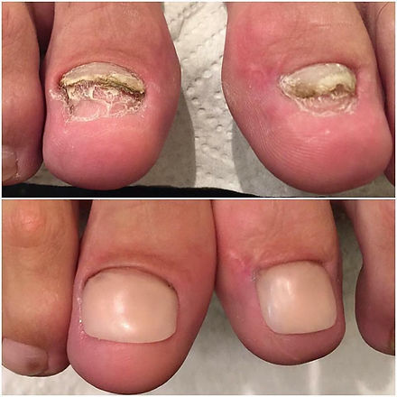 LCN nails 2.jpg