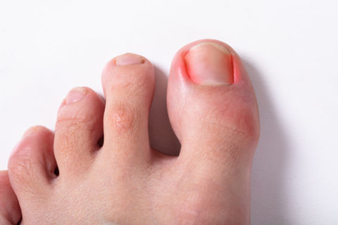Ingrown toenail.jpg