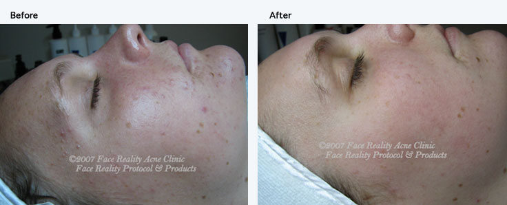 noninflamed_acne_small