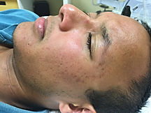 non-inflamed acne example
