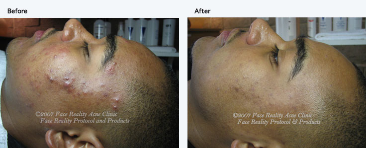 inflamed_acne_hyperpigmentation_small