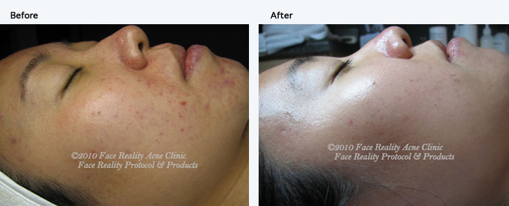 1-inflamed_acne_small