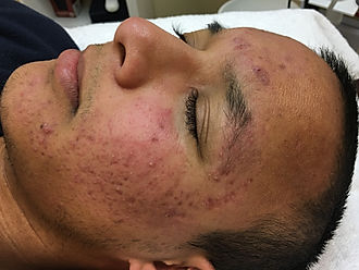 inflamed acne example