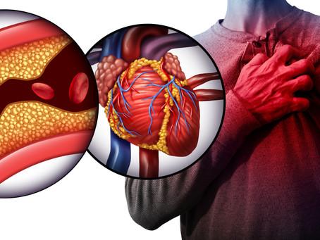 What is a Cardiac Diet?