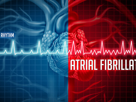 The Afib Diet: How to Prevent Afib Attacks Naturally