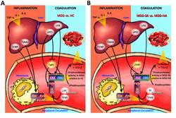 Liver MDD Action