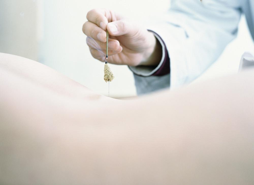 Découvrez la formation Acupuncture de la première Ecole d'Acupuncture de Normandie au Centre de Formation du Pôle de Thérapeutes.