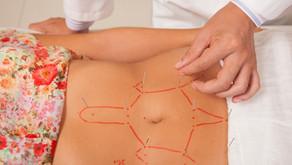 La Formation Acupuncture Abdominale est lancée ! Une belle histoire derrière cette décision.