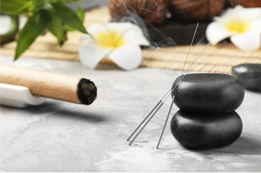 Comment s'inscrire à la formation acupuncture
