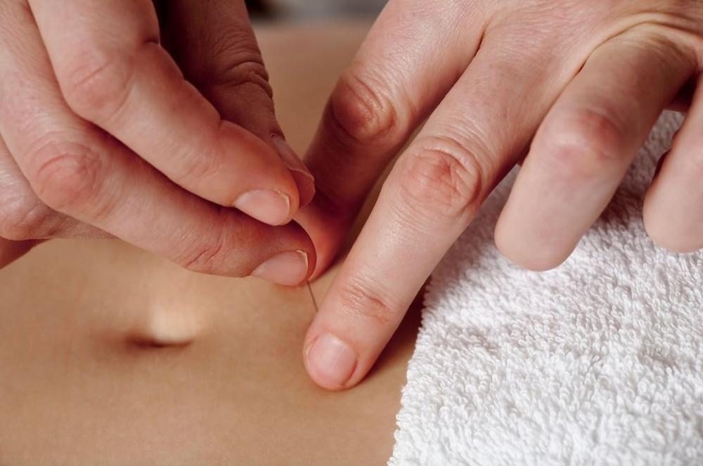 Pratique de l'Acupuncture Abdominale lors de la Formation au Pôle de Thérapeutes